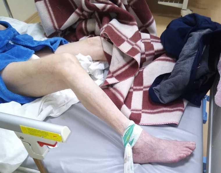 Пожилая пермячка получила травмы, попав на лечение в больницу. Родственники винят врачей
